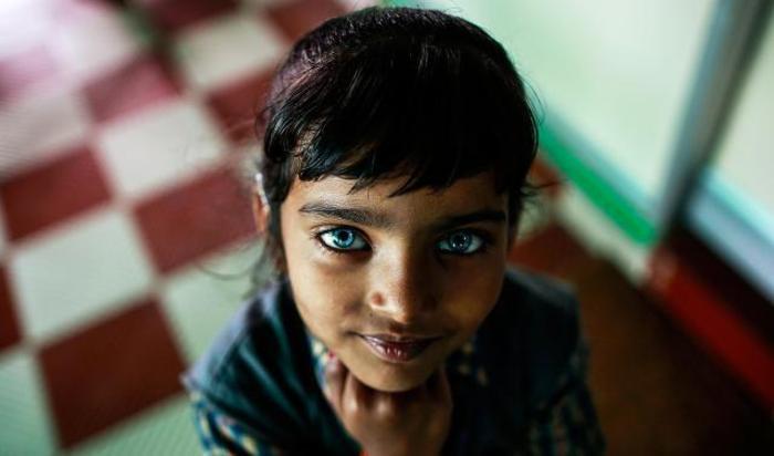 Девочка с нарушениями слуха и речи в реабилитационном центре в Бхопале, Индия.